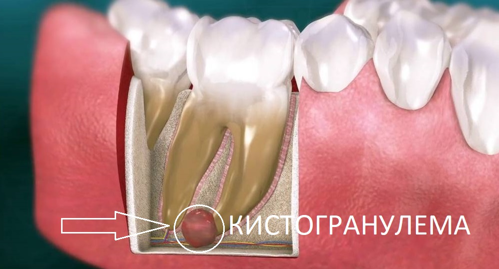 Когда все-таки удаляют зуб с кистой или гранулемой?