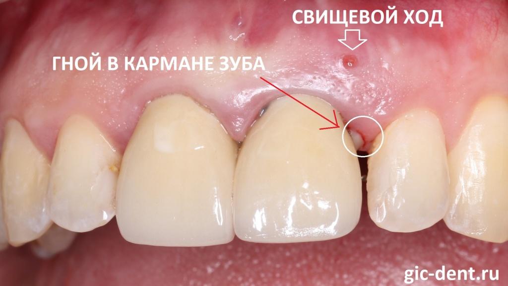 Мы в НИЦ предложили ей вариант одномоментного удаления переднего зуба с имплантацией и протезированием.