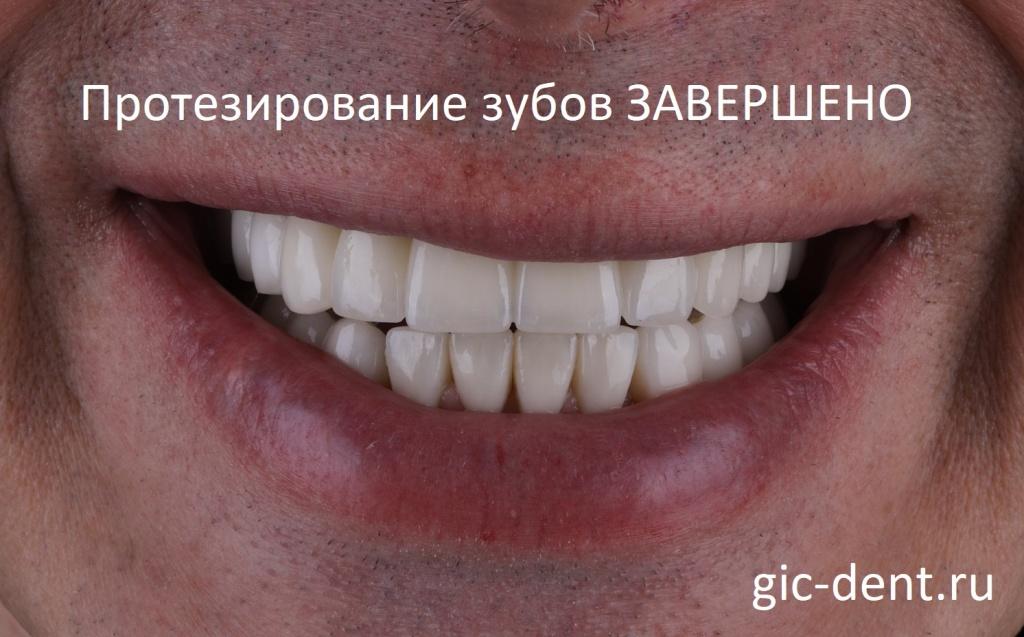 Протезирование зубов пациенту с инсулинозависимым сахарным диабетом длилось 2 года. Немецкий имплантологический центр