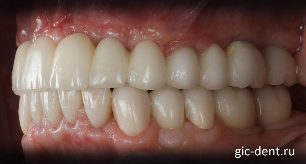 В некоторых моментах этого протезирования зубов даже трудно определить: где коронка на зуб, где на импланте, где вообще просто коронка подвешена. Немецкий имплантологический центр