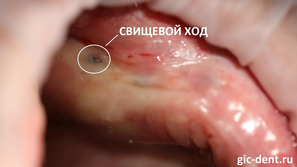 при визуальном осмотре отчетливо виден свищевой ход и имплант буквально просвечивается через десну
