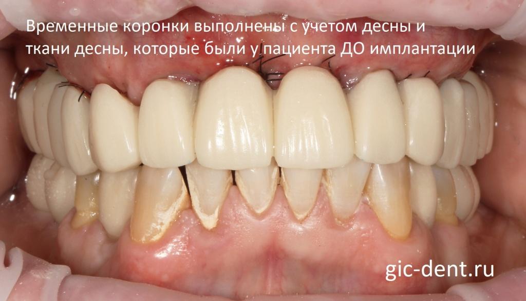 Какие зубные протезы при сахарном диабете thumbnail