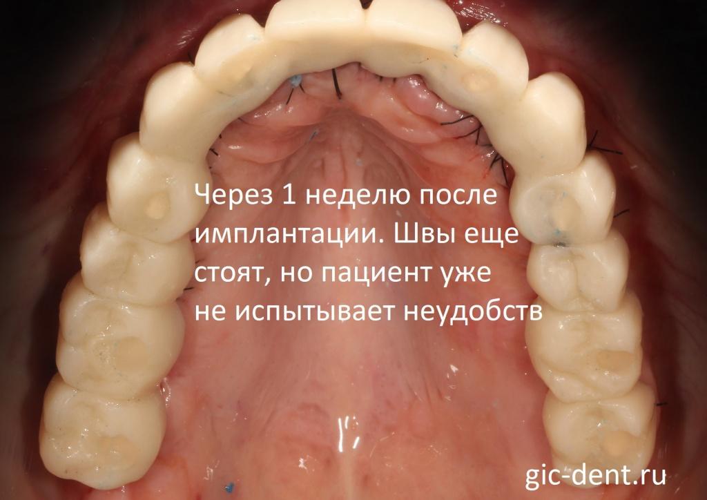 Временное протезирование зубов верхней челюсти. Пациент через неделю после имплантации уже не испытывал неудобств. Немецкий имплантологический центр