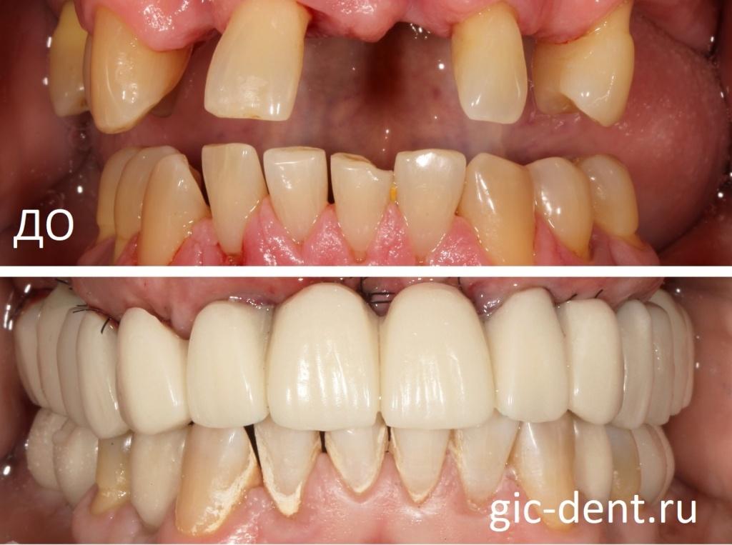 Временное протезирование зубов верхней и нижней челюсти у пациента с сахарным диабетом 1 типа. Немецкий имплантологический центр