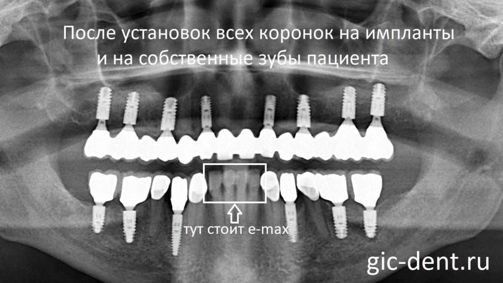 Контрольный снимок после установки всех коронок окончательно на импланты и на зубы