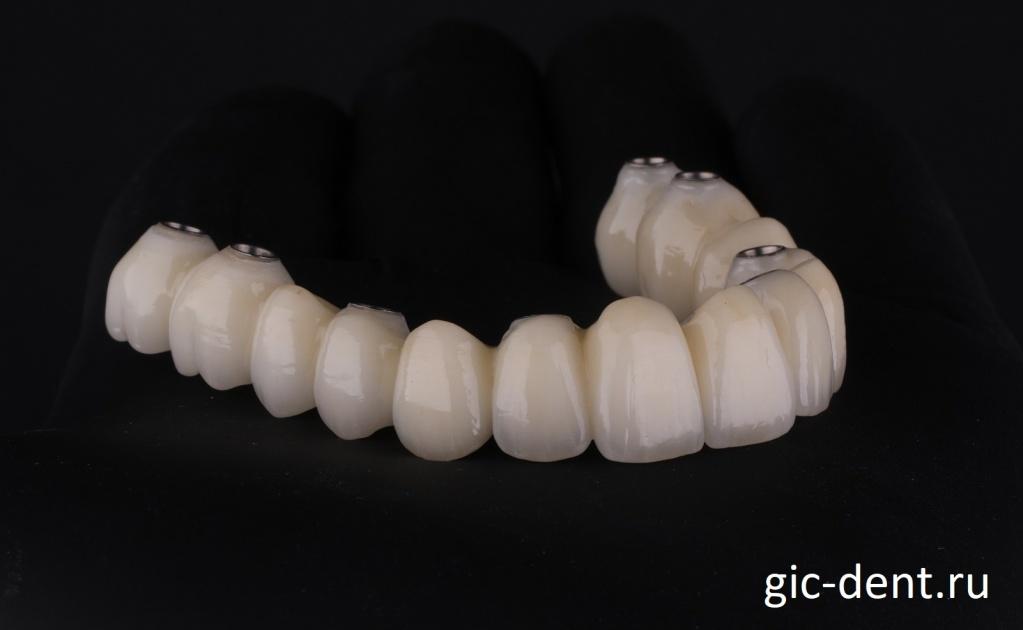 Зубные коронки верхней челюсти изготовлены. Все глазуровано и отполировано. Немецкий Имплантологический центр.