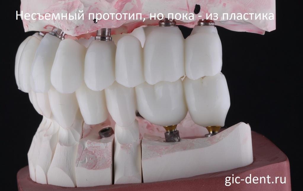 На снимке готовые коронки зубов, но они напечатаны еще из пластика. Немецкий имплантологический центр