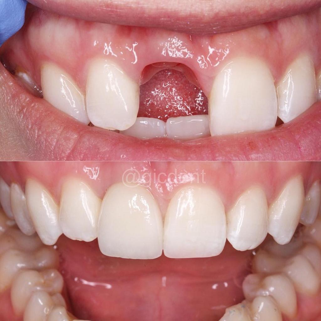 Фото до и после имплантации зубов, работы выполнены в Немецком имплантологическом ценре
