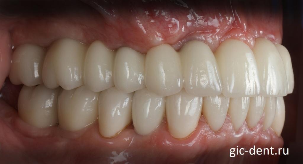 Вид уже установленных коронок на верхние и нижние импланты и зубы. Немецкий имплантологический центр.
