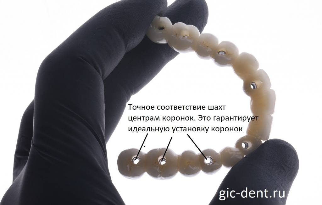 На снимке отлично видно, насколько точно соответствуют шахты центрам зубных коронок. Немецкий имплантологический центр.